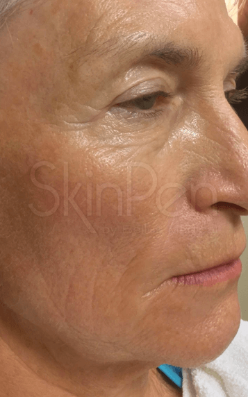 Wrinkle Free with Skin Pen! After