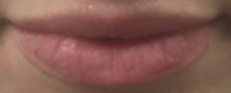 Beautiful Lips with Restylane Before