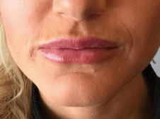 1ml Juvederm Ultra Plus After (Immediately)