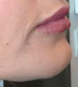 1ml Juvederm Ultra Plus After