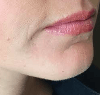 1ml Juvederm Ultra Plus Before