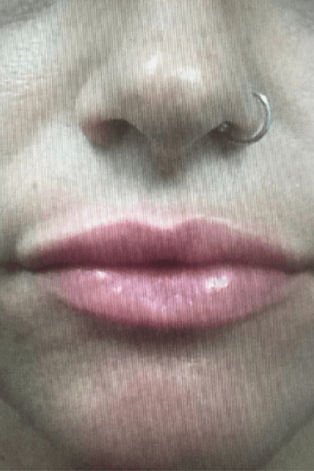 Lip Enhancement After
